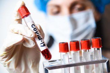 Тест на коронавирус можно сдать в Куркино